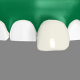 Dental-Veneers San Diego
